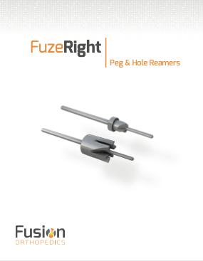 FuzeRight Cover